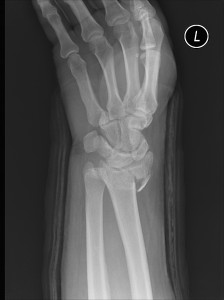 An X-Ray showing Jeff's Left Wrist fracture